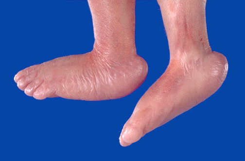 Rocker Bottom Feet